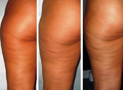 Результат до-после антицеллюлитного массажа