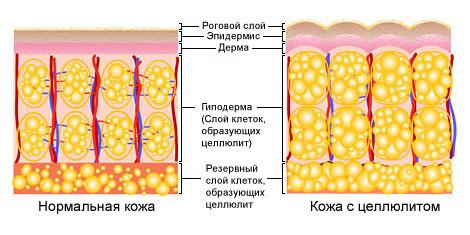 Типы целлюлита